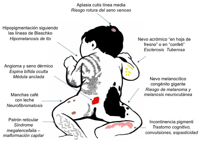 Figura 5. Trastornos cutáneos y alteración neurológica asociada