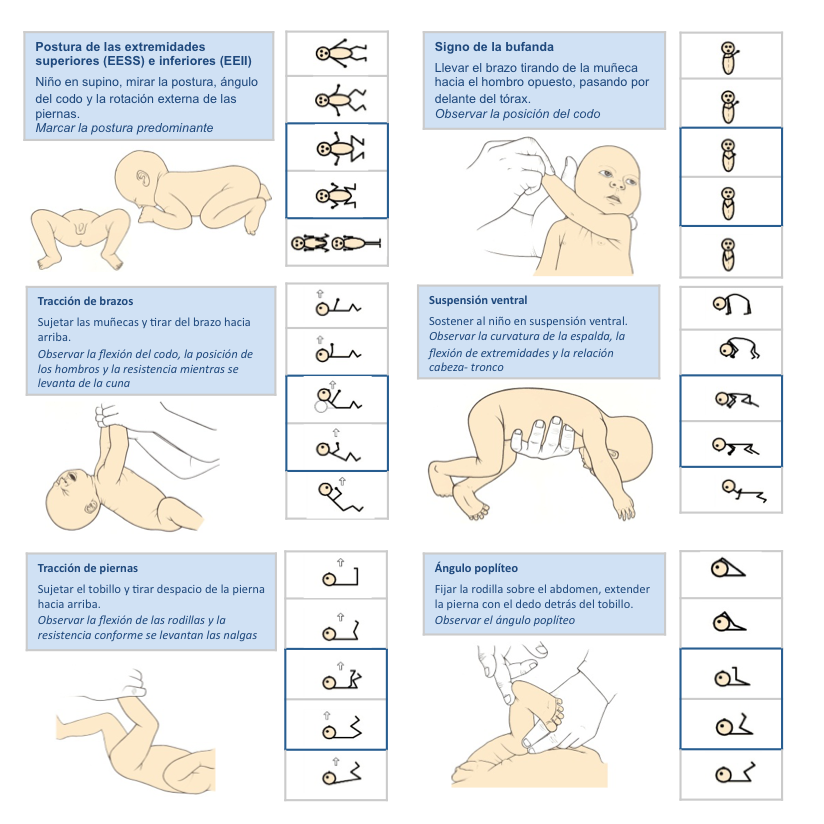 Figura 6. Maniobras para explorar el tono muscular