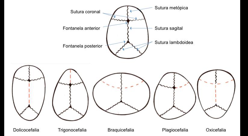 Figura 3. Suturas, fontanelas y sinostosis (en línea discontinua roja se señala la sutura sinostótica).
